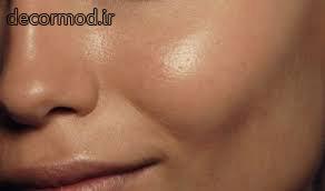 پوست های چرب 44