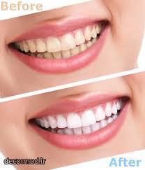 دندان یث