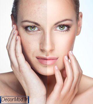انواع جوان سازی پوست 8