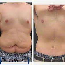 کشیدن پوست شکم 1