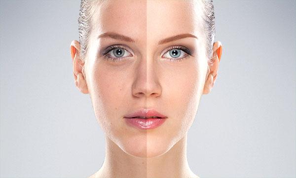 لیزر پوست و عوارض آن 3