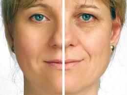 انواع روش های لیزر پوست صورت 3