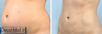 کشیدن پوست شکم 6