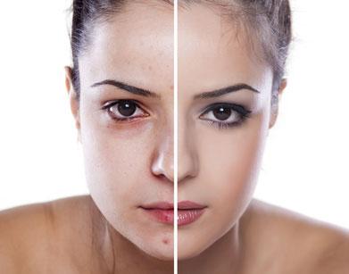 مراقبت های لازم پس از میکرودرم پوست