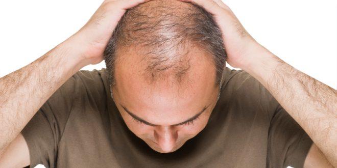 در رابطه با ریزش مو چه می دانید ؟